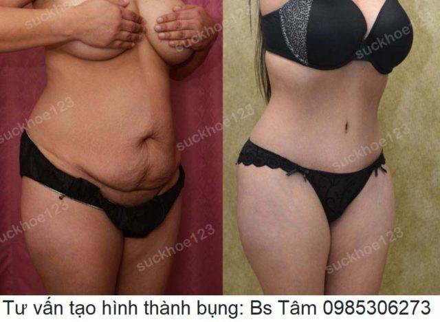 tao-hinh-thanh-bung-dr-tam-ca-13-1
