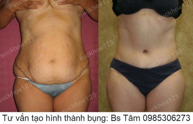 tao-hinh-thanh-bung-dr-tam-ca-15-2